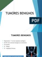 Tumores Benignos Del Esofago.