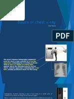 Basics of Chest X-ray