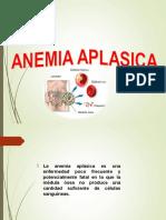 Anemia Aplasica11111