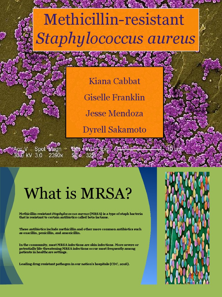 mrsa pp microsoft pp ppt final without ncp | Methicillin