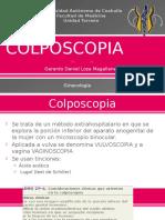 Colposcopia Loza 160708013758