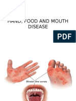 Hand, Food and Mouth Disease