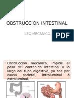ileomecanico-140429121717-phpapp02
