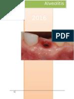 Alveolitis Seca 1