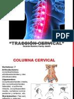Tracción Cervical