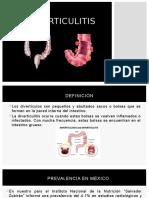 Diverticulitis EQ6