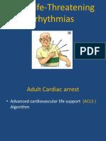 Arrhythmias - Copy - Copy