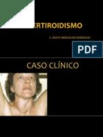 Medicina III - Hipertiroidismo