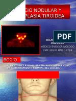 Medicina III - Nódulo Tiroideo