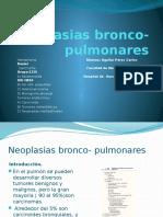 tumores neuroendocrinos pulmonares
