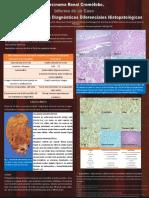 Neoplasias oncocíticas renales
