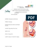 PATOLOGIA DE GASTRITIS..docx