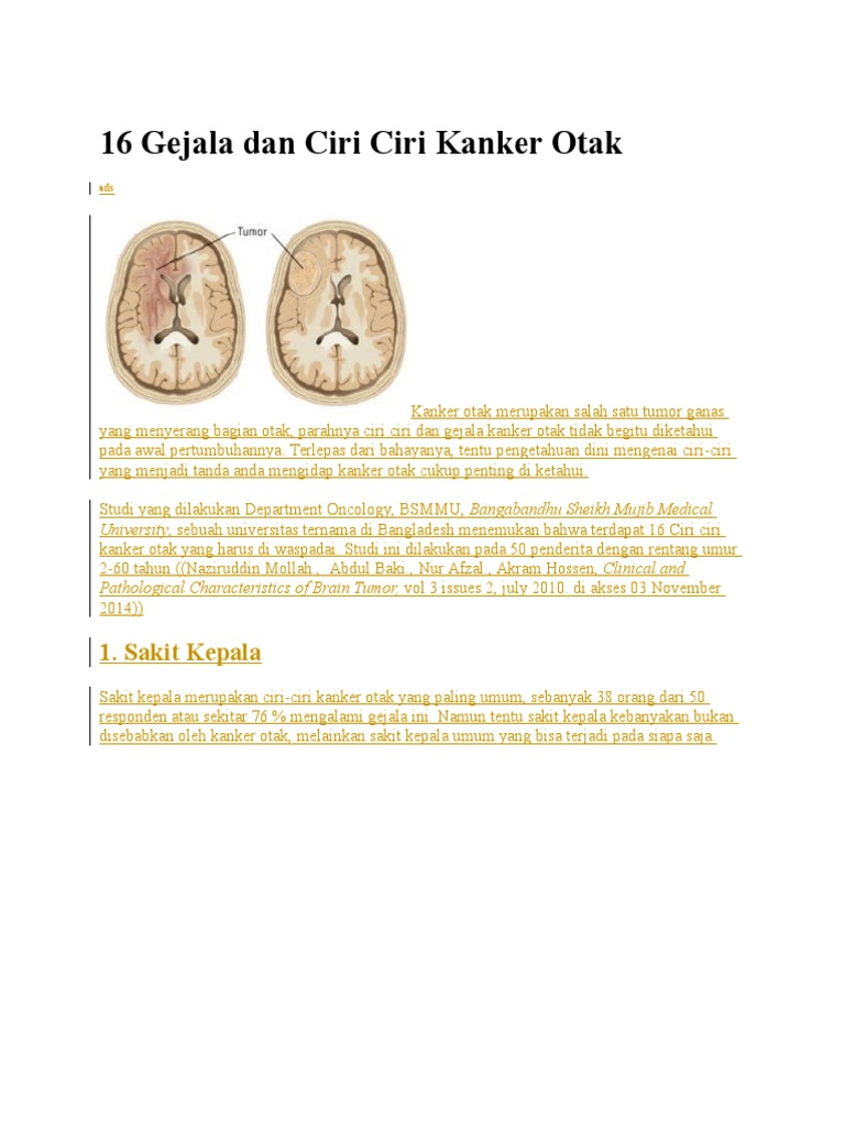 Ciri Ciri Orang Sakit Kanker Otak - Ini Cirinya