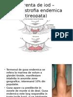STUDIU de CAZ-Carenta de Iod _DET(Distrofia Endemica Tireopata)