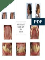 modelo de fotos intrabucales y extrabucales