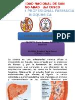 Presentación Semiologia de Cirrosis Hepatica