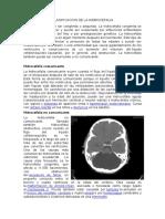 Clasificacion de La Hidrocefalia