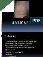 17. Urticaria