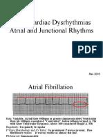 ECG Dysrhythmias II
