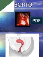 3. Aborto