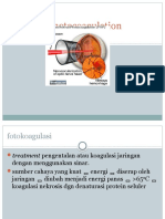 Retinal Photocoagulation.pptx