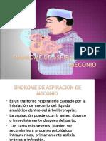 Sindrome de Aspiracion de Meconio (1)