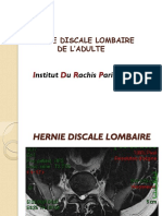 Hernie Discale Lombaire