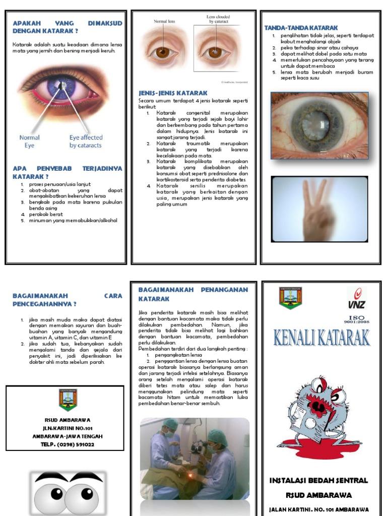 archivo pdf de diabetes katarak