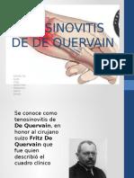 Tenosinovitis de de Quervain