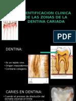 Zonas en Dentina Cariada