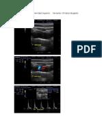 protocolo arterial extremidad superior imagenes