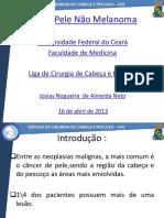 CA de Pele Nao Melanoma - Josias