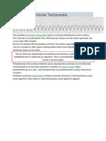Pulseless Ventricular Tachycardia