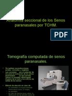 5 3anatomaseccionaldelossenosparanasalesportchm 130515060016 Phpapp02 (1)