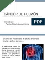 Cáncer-de-pulmón (1)