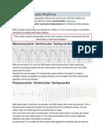 Other Tachycardia Rhythms