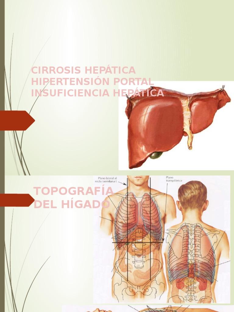 Insuficiencia hepática portal hipertensión