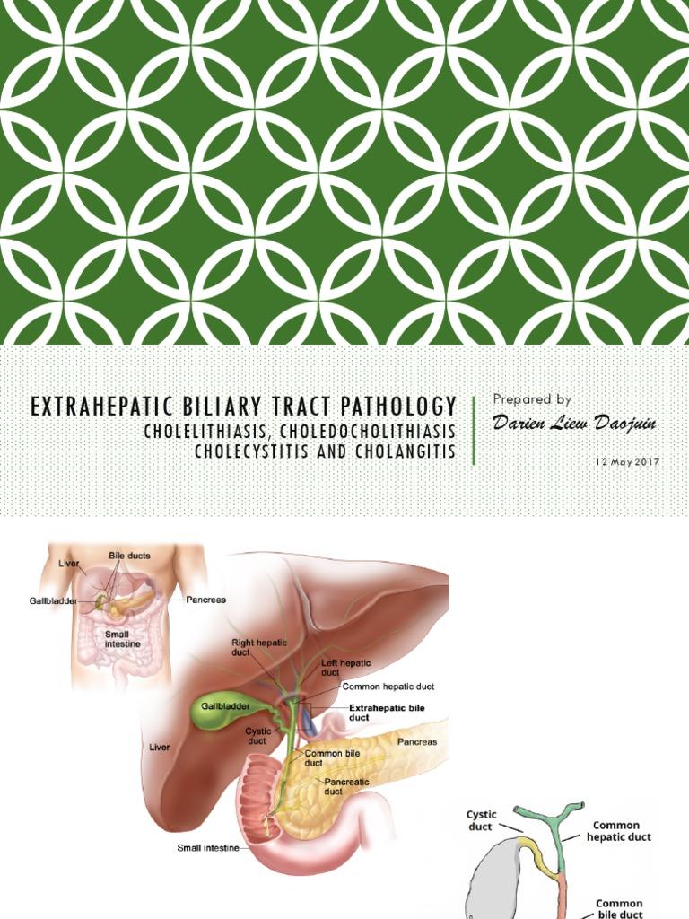 Extrahepatic Biliary Tract Pathology - Cholidolithiasis ...