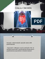 Boala Crohn II