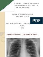 Ppt Radiologi Siti Norhasanah