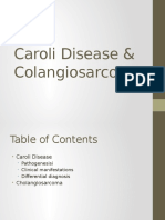Caroli Disease and Cholangiocarcinoma