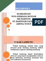 TUKAK LAMBUNG