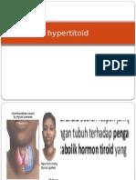 Hyper Tito Id