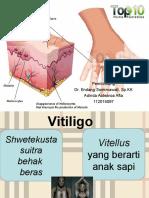 PPT Referat Vitiligo