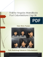 Fraktur Angulus Mandibula Post Odontektomi Gigi 38.pdf