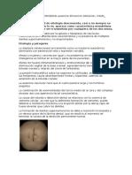 DISOSTOSIS CLEIDOCRANEANA Ausencia Dimuncion Slteracion