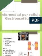 ERGE y Cancer de Esofago