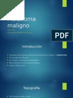 Melanoma Maligno