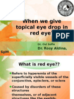 When We Give Topical Ed in Red Eye