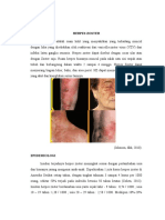 Epidemiologi Dan Patofisiologi Herpes Zoster